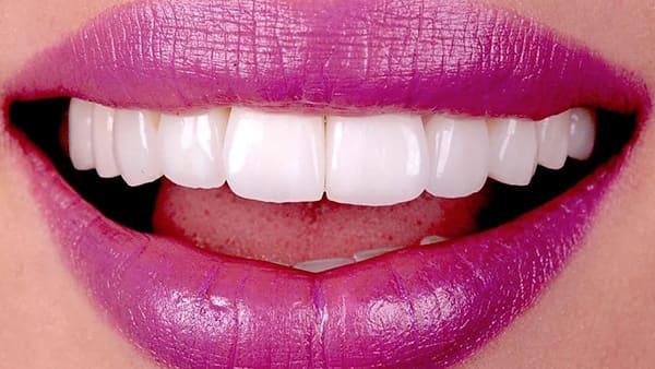apres facette dentaire avant apres facette dentaire paris facette dent avant apres docteur roxana spataru occlusodontiste paris 16 alma cabinet dentiste paris 16