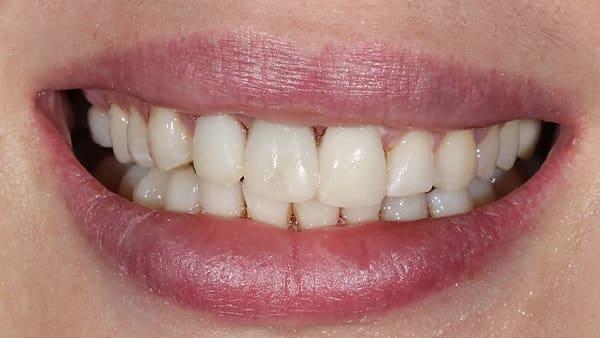 avant facette dentaire avant apres facette dentaire paris facette dent avant apres docteur roxana spataru occlusodontiste paris 16 alma cabinet dentiste paris 16