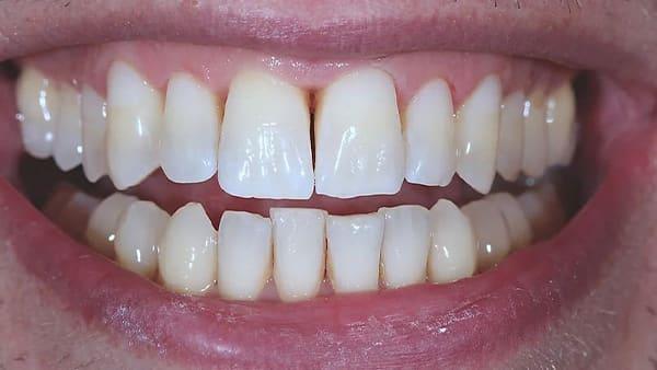 blanchiment dent avant apres comment blanchir ses dents blanchiment dentaire paris 16 docteur roxana spataru occlusodontiste paris 16 alma cabinet dentiste paris 16 blanchiment dentaire apres