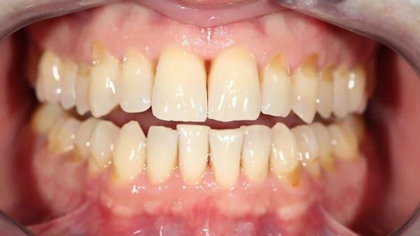 blanchiment dent avant apres comment blanchir ses dents blanchiment dentaire paris 16 docteur roxana spataru occlusodontiste paris 16 alma cabinet dentiste paris 16 blanchiment dentaire avant