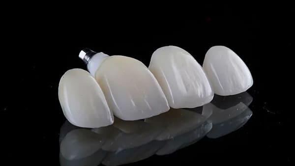 couronne dentaire prix couronne dentaire ceramique couronne dentaire avant apres docteur roxana spataru occlusodontiste paris 16 alma cabinet dentiste paris 16 1