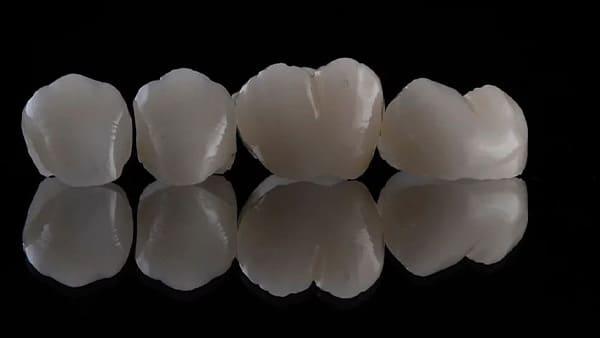 couronne dentaire prix couronne dentaire ceramique couronne dentaire avant apres docteur roxana spataru occlusodontiste paris 16 alma cabinet dentiste paris 16 2