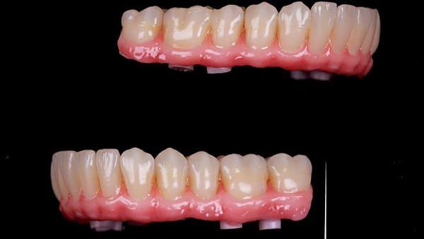 restauration dentaire implant dentaire complet implant dentaire paris 16 docteur roxana spataru occlusodontiste paris 16 alma cabinet dentiste paris 16 1