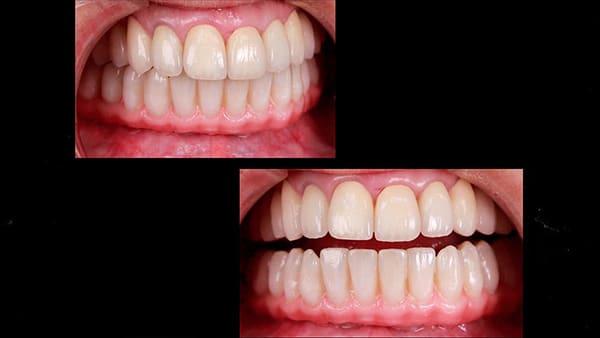 restauration dentaire implant dentaire complet implant dentaire paris 16 docteur roxana spataru occlusodontiste paris 16 alma cabinet dentiste paris 16 2