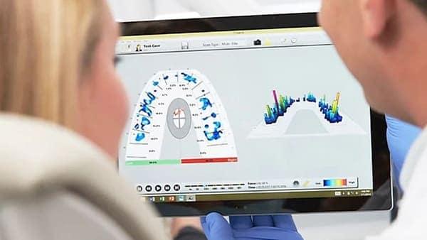 t-scan paris 16 tekscan i-scan tekscan pressure 2 docteur roxana spataru occlusodontiste paris 16 alma cabinet dentiste paris 16