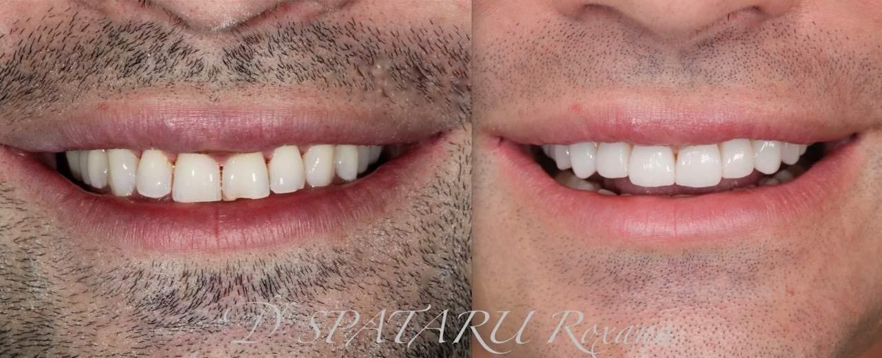 facette dentaire avant apres facette dentaire limage prix d une facette dentaire avis docteur roxana spataru paris 16