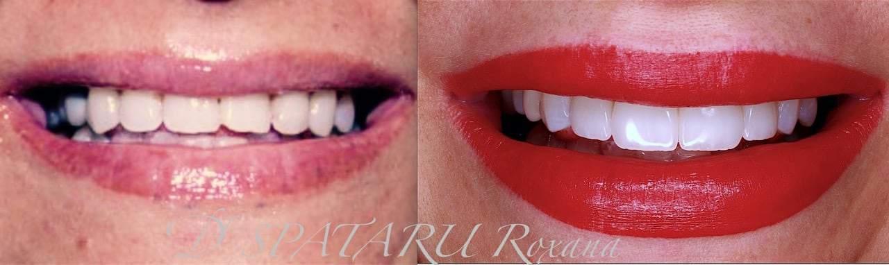facette dentaire avant apres facette dentaire limage prix d une facette dentaire avis docteur roxana spataru paris 5
