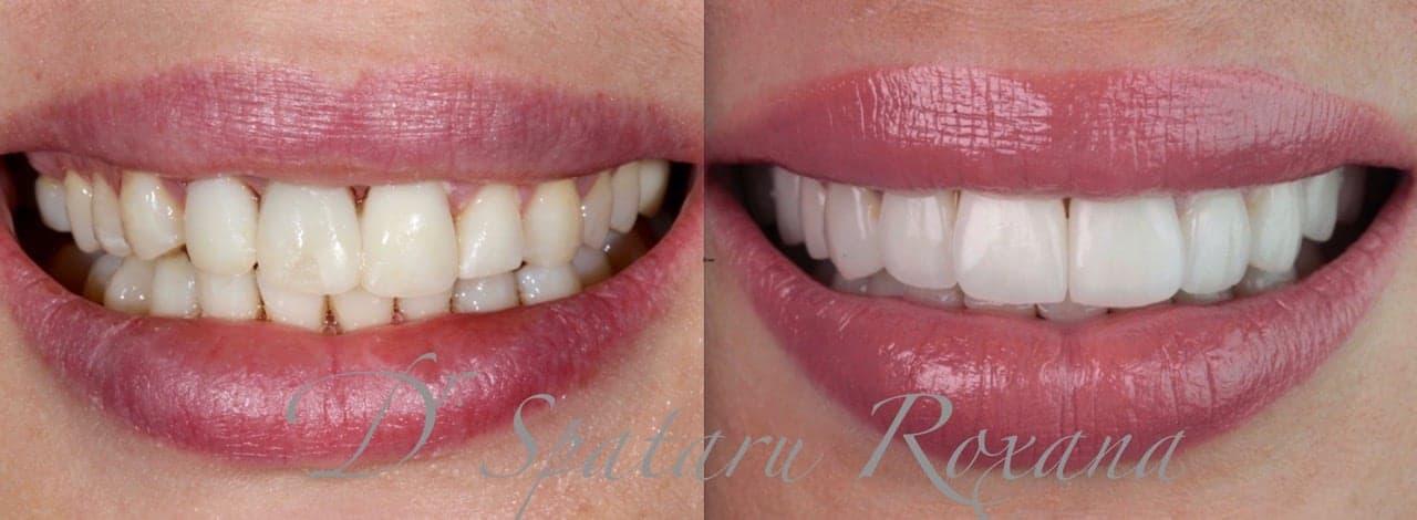 facette dentaire avant apres facette dentaire limage prix d une facette dentaire avis docteur roxana spataru paris 6