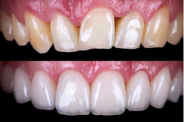 facette dentaire avant apres facette dentaire limage prix d une facette dentaire avis docteur roxana spataru paris 7