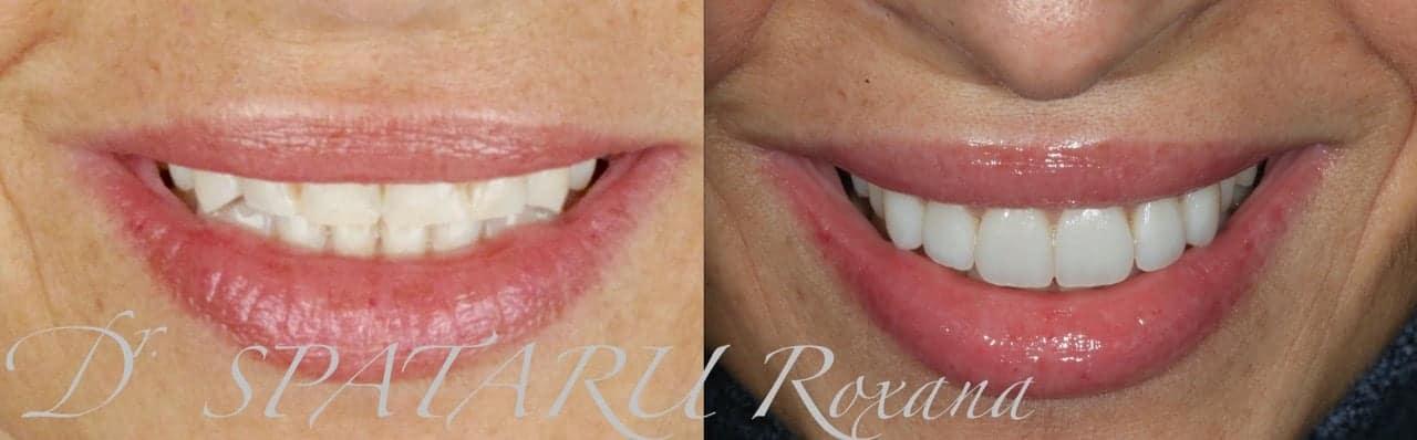 facette dentaire avant apres facette dentaire limage prix d une facette dentaire avis docteur roxana spataru paris 8