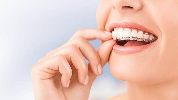 invisalign avis avant apres invisalign paris 8 invisalign prix invisalign tarif invisalign resultat invisalign dentiste dr spataru roxana paris 8