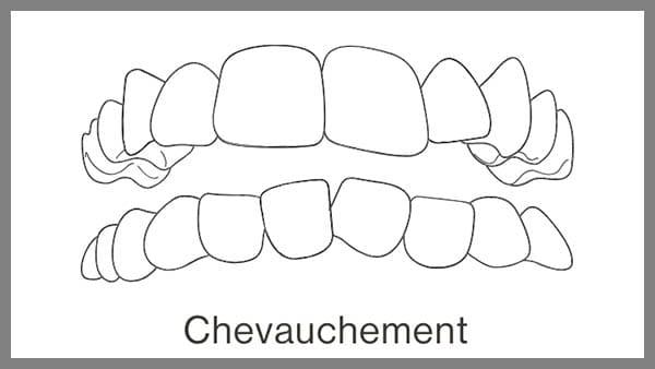 invisalign dent qui se chevauchent dent qui se chevauche en bas dent qui se chevauche que faire invisalign paris dr spataru roxana paris 8