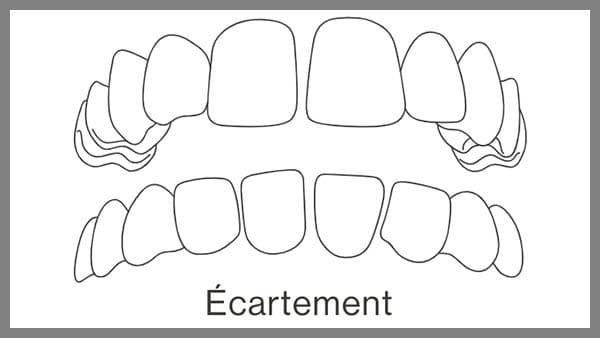 invisalign paris 8 dent ecartees dents ecartees en haut dent ecarte solution ecart dentaire solution dr spataru roxana paris 8