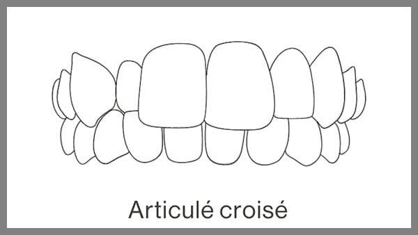 invisalign paris 8 dr spataru roxana dent mal aligne dents mal placees adulte dent mal positionnee dent mal aligne solution dent mal aligne adulte