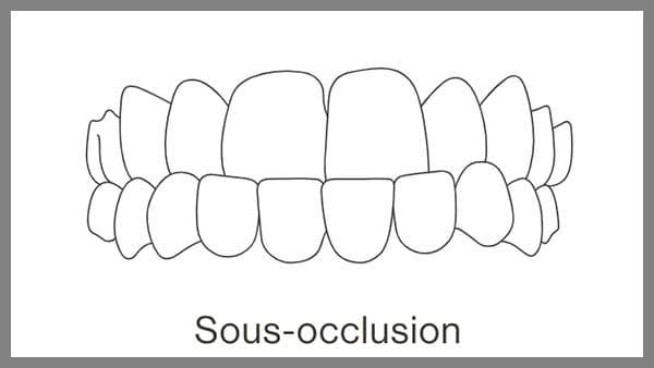 invisalign paris 8 sous occlusion dentaire definition sous occlusion dentaire traitement dr spataru roxana paris 8