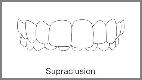 invisalign paris 8 supraclusion dentaire supraclusion orthodontie traitement supraclusion adulte traitement supraclusion orthodontie supraclusion invisalign